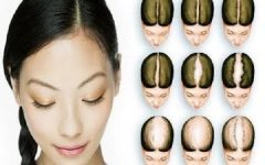 Thai dermatologist Researcher won research on treatment for genetics baldness