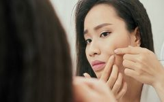 8 Tricks for Getting Rid of Pimples (Almost) Overnight